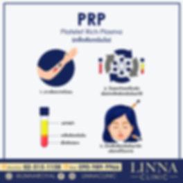 prp-01.jpg