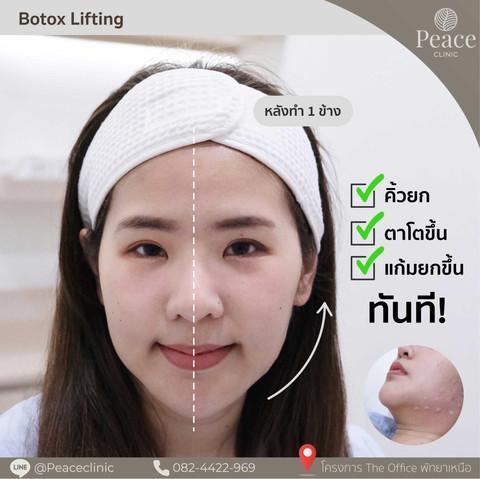 botox lifting