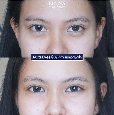 Aura Eye.JPG