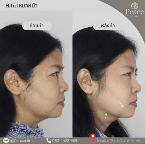 hifu whole face