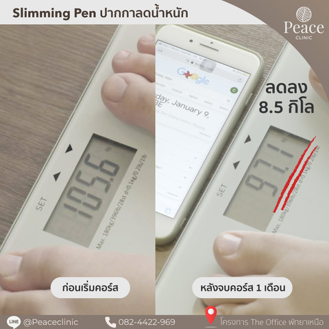slimming pen peace clinic