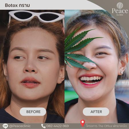 botox jaw