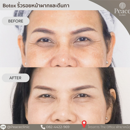 botox wrinkle