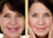 PRP-Facial.jpg