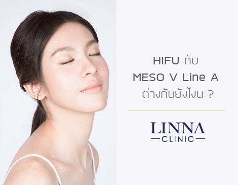 HIFU กับ MESO V Line A ต่างกันยังไงนะ?