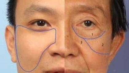 facial-ligaments-e1484692999243-300x170.