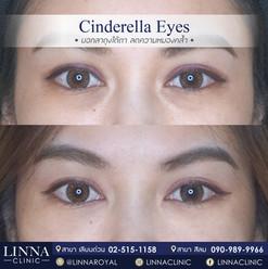 cinderella eye