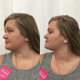 Double Chin- Before & After 2.JPG