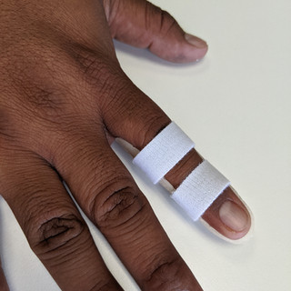 Custom Fabricated finger extension splint