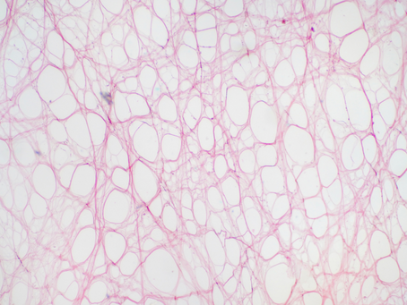 S'informer sur la Thérapie du Tissu Conjonctif
