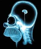 Homer-Simpsons-brain-seen-with-MRI-X-ray