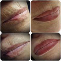 Reconstrucción en labios (Sobre bordes d