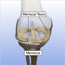 Meniscal Repair 1.jpg