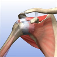 Fully Torn Rotator Cuff 1.2.jpg