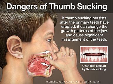 dangers-of-thumb-sucking-thumb.jpg