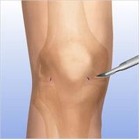 Meniscal Repair 2.jpg
