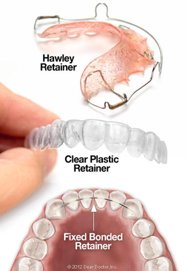 types-of-orthodontic-retainers.jpg
