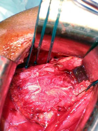 Music City Orthopaedics and Sports Medicine | Bankart Repair for Shoulder Instability: Figure 5b
