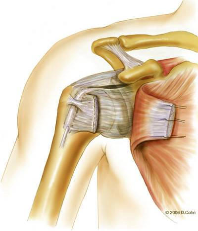 Music City Orthopaedics and Sports Medicine | Bankart Repair for Shoulder Instability: Figure 4a