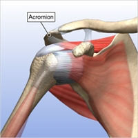 Fully Torn Rotator Cuff 1.jpg