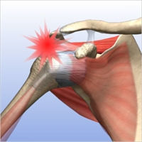 Partially Torn Rotator Cuff 1.2.jpg