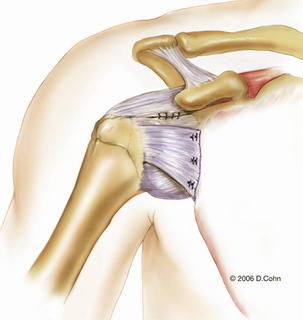 Music City Orthopaedics and Sports Medicine | Bankart Repair for Shoulder Instability: Figure 10b