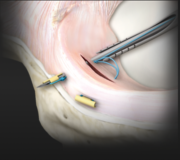 Dr. Jason Jones | Meniscal Repair 3.png