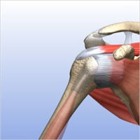 Partially Torn Rotator Cuff 4.jpg