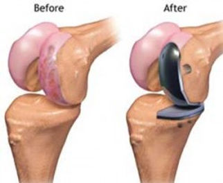 MCO | NKS | Jason A. Jones, MD | Knee Re