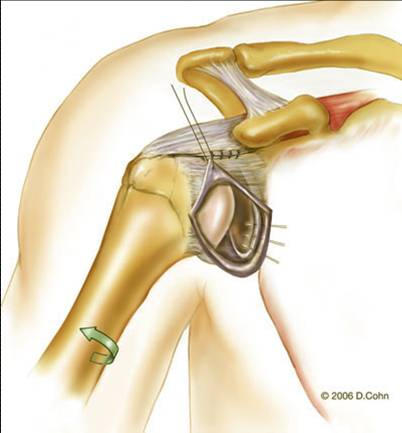 Music City Orthopaedics and Sports Medicine | Bankart Repair for Shoulder Instability: Figure 8b