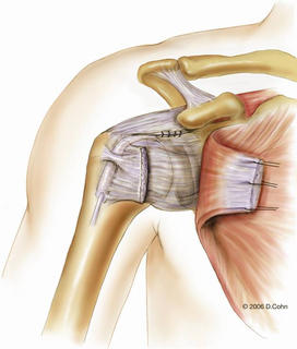 Music City Orthopaedics and Sports Medicine | Bankart Repair for Shoulder Instability: Figure 5d