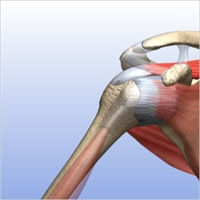 AC Joint Resection (Arthritic Collarbone