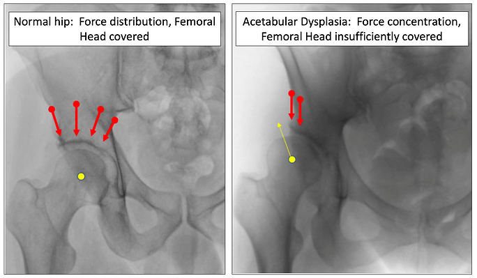 Dr. Tania Ferguson _ Normal Hip vs Dyspl