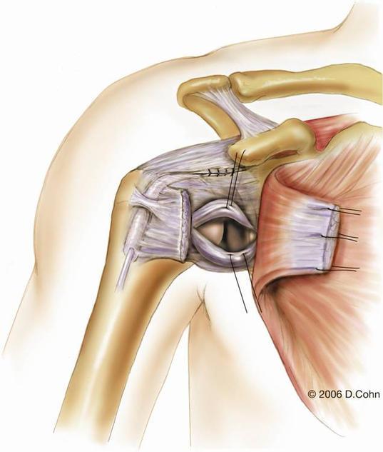 Music City Orthopaedics and Sports Medicine | Bankart Repair for Shoulder Instability: Figure 6c