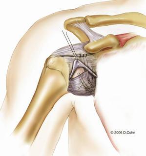 Music City Orthopaedics and Sports Medicine | Bankart Repair for Shoulder Instability: Figure 9b