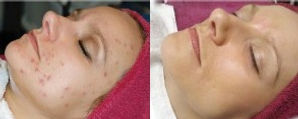 Click to be redirected to Osmosis.co.nz to see which products gave these results.