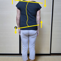 Case study/Ms.S's lower back pain(1)  ~her lumber spine is not straight~