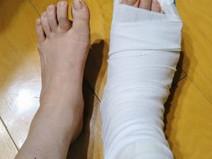 脚長差の原因 ~骨端成長軟骨板における骨折~
