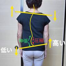 事例紹介 S様の腰痛① ~腰が真っすぐじゃない~
