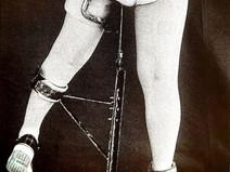 ペルテス病は脚長差の原因となりうるのか? 答え:イエス
