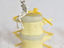 脚長差は「腰の椎間板ヘルニア」のリスクになるのか?
