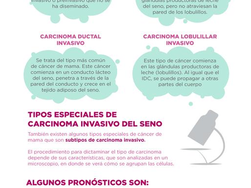 ¿Sabes qué tipo de cáncer de mama tienes o tuviste?