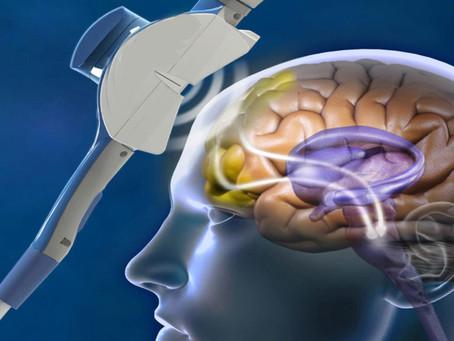 La Estimulación Magnética Transcraneal puede ayudar a la depresión