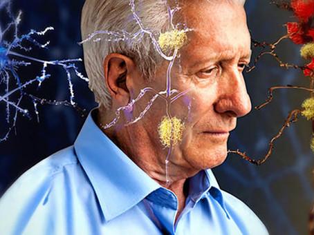 Diferencias entre la Demencia Alzheimer y la Demencia Vascular