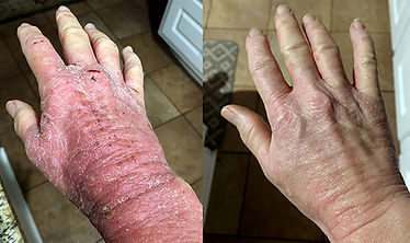 Hands Before After 555.jpg