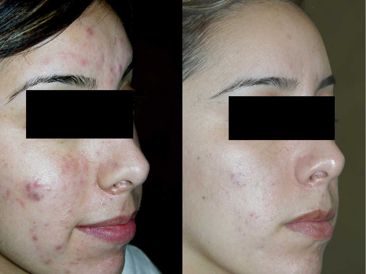 acne-treaments-utah