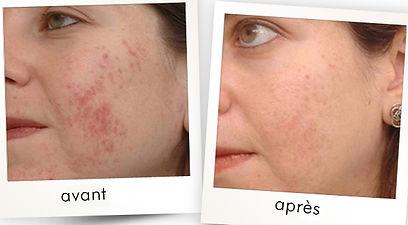 traitement acnée