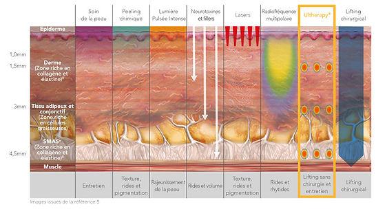 ulthera-differenciation-ultrasons-1.jpg