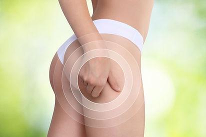 10-conseils-pour-debarrasser-cellulite.jpg