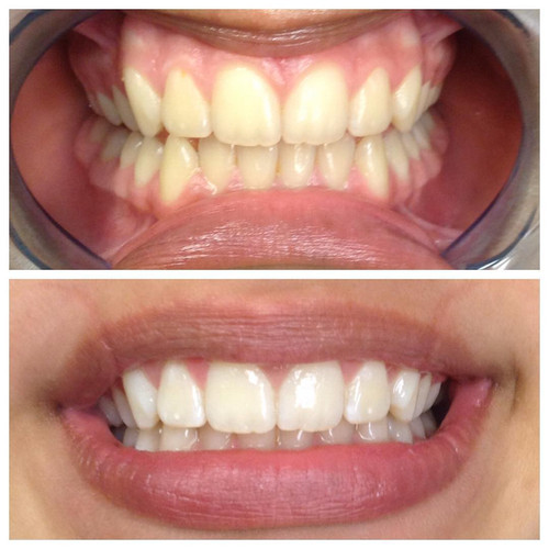 Teeth Whitening Company Denver